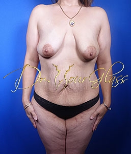wonder-breast-lift-with-implant-dr-hourglass-wilberto-cortes-13059-01