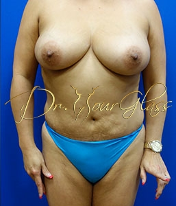 wonder-breast-lift-with-implant-dr-hourglass-wilberto-cortes-13060-01