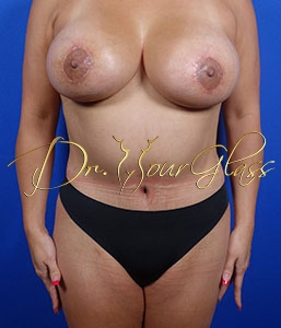wonder-breast-lift-with-implant-dr-hourglass-wilberto-cortes-13060-02