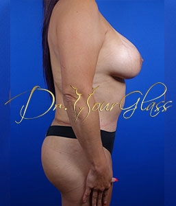wonder-breast-lift-with-implant-dr-hourglass-wilberto-cortes-13060-04