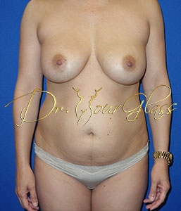 wonder-breast-lift-with-implant-dr-hourglass-wilberto-cortes-13061-01