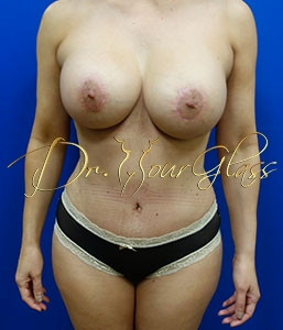 wonder-breast-lift-with-implant-dr-hourglass-wilberto-cortes-13061-02