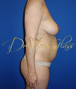 wonder-breast-lift-with-implant-dr-hourglass-wilberto-cortes-13061-03