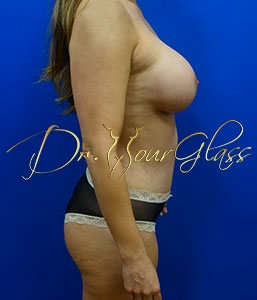 wonder-breast-lift-with-implant-dr-hourglass-wilberto-cortes-13061-04